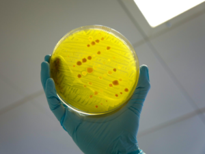 antimicrobial resistance test on bacteria in petri dish